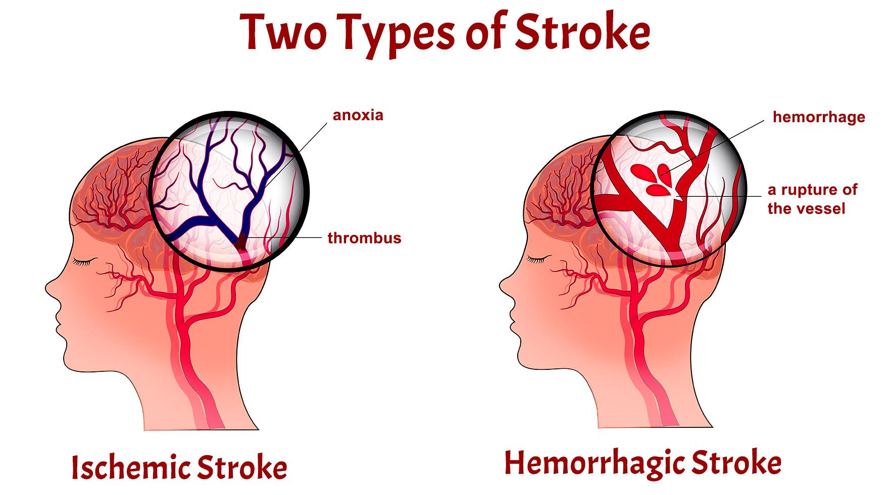 Types of Strokes
